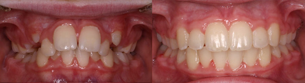 Crowding treated with arch expansion and no extractions