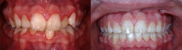 Crowding with deep overbite leading to improved oral health after alignment