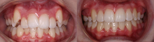 Adult with severe crowding treated with 2 upper extractions and one lower incisor extraction