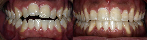 Adult with open bite treated with orthodontics and orthognathic surgery